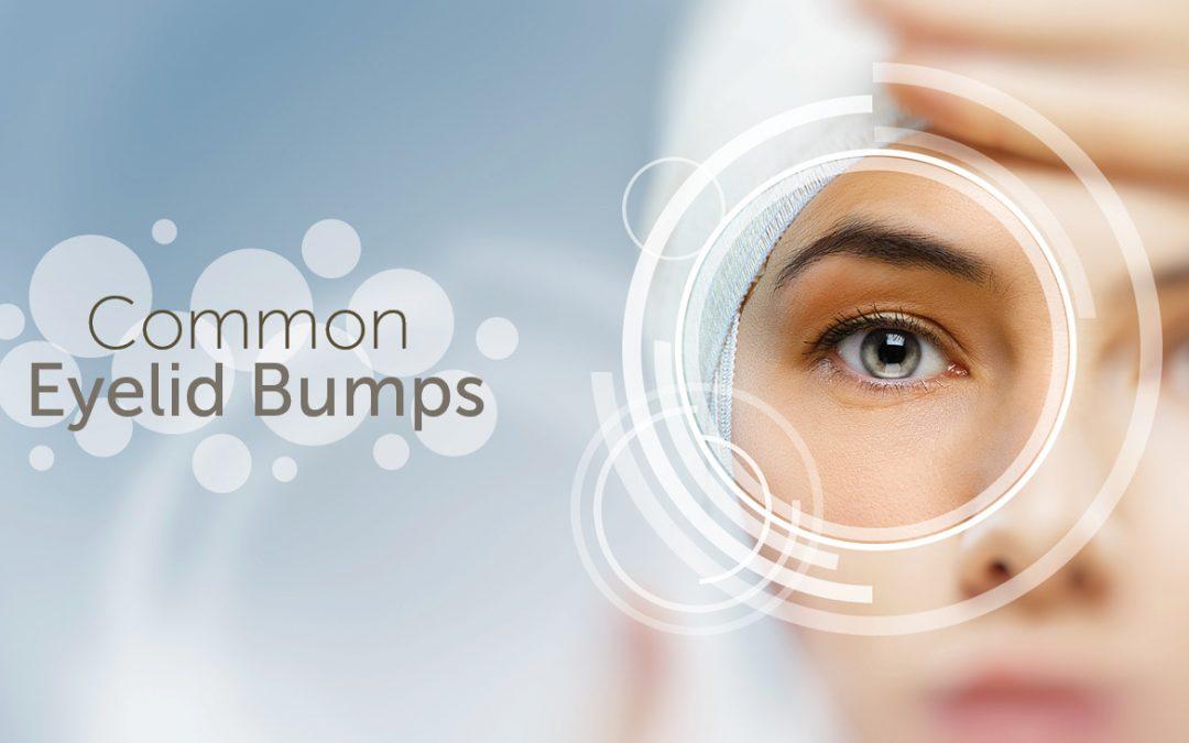 common eye bumps image