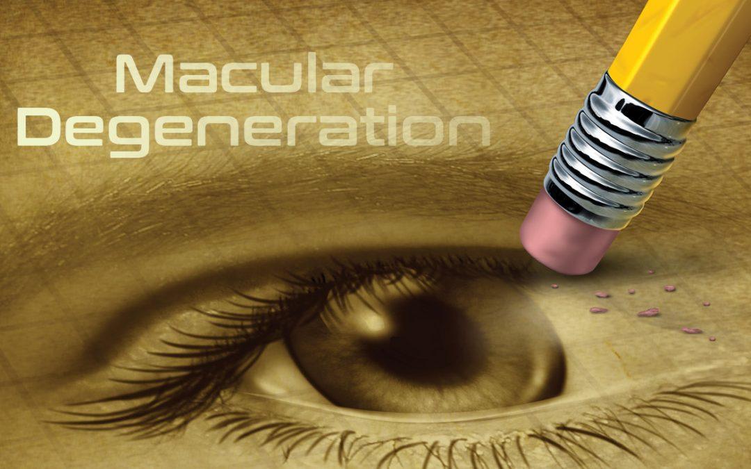Macular Degeneration image